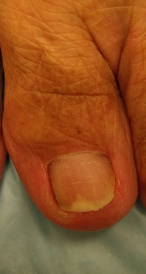 Before Amp After Pictures Medical Center Minneapolis Varicose Veins St Paul Nail Fungus Mn
