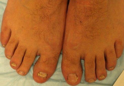Как побороть грибок ног и ногтей народными средствами